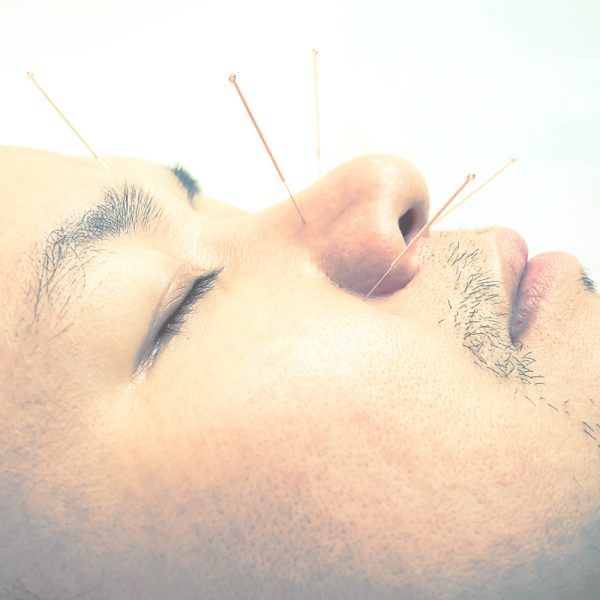 akupunktura-korzysci