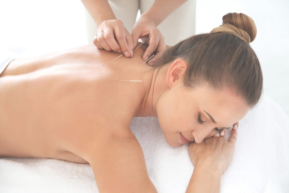 Korzyści z akupunktury