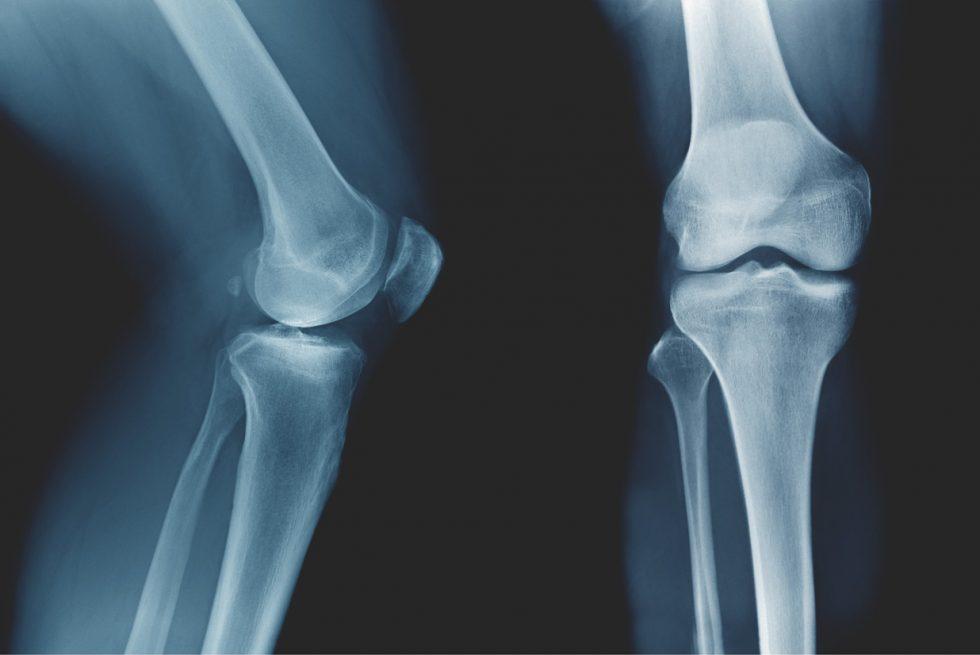 Osteokalcyna i kości a reakcja stresowa